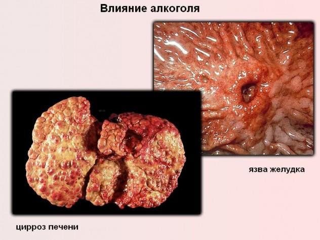 Цирроз печени и язва желудка