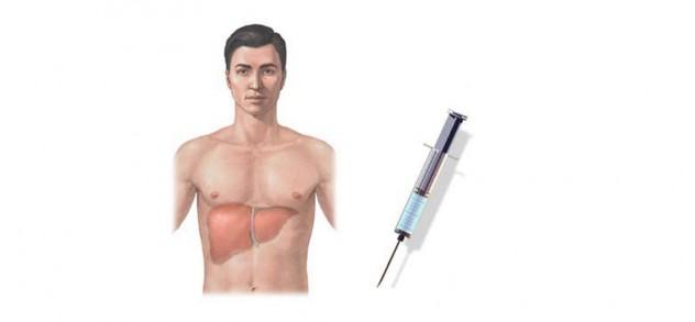 Гепатит у человека