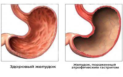 Первично-хронический эрозивный гастрит