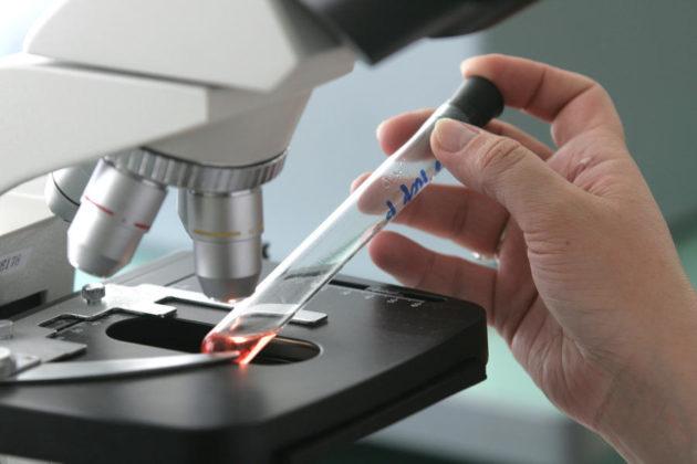 анализ крови на гепатит