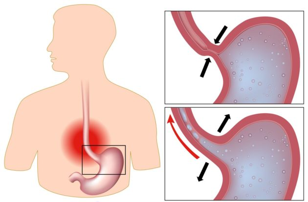 Рефлюкс желудка