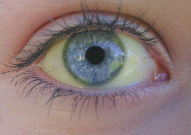 желтушность белков глаз