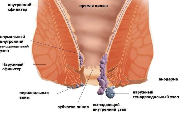 Болезни прямой кишки: геморрой