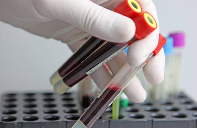 Анализ крови при криптогенном гепатите