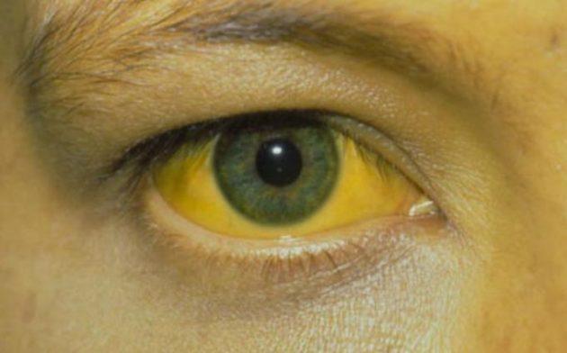 Криптогенный гепатит сопровождается желтушностью склер и кожи