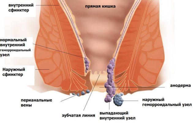 Лечение геморроя без операции возможно