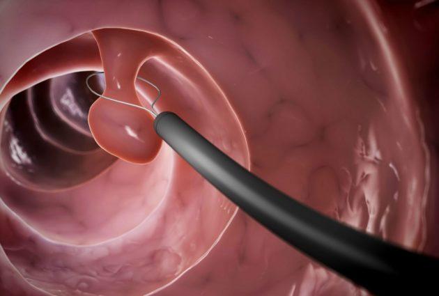 Удаление полипа при гиперплазии желудка