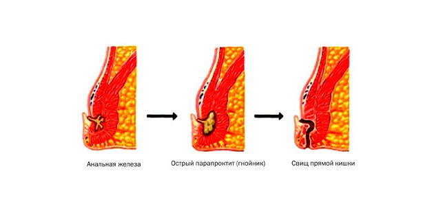 схема появления свища при парапроктите