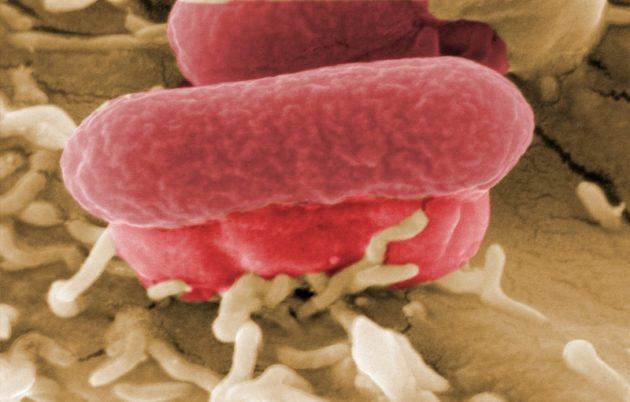 Инфицированная кишечной палочкой еда может стать причиной пищевого отравления у ребенка