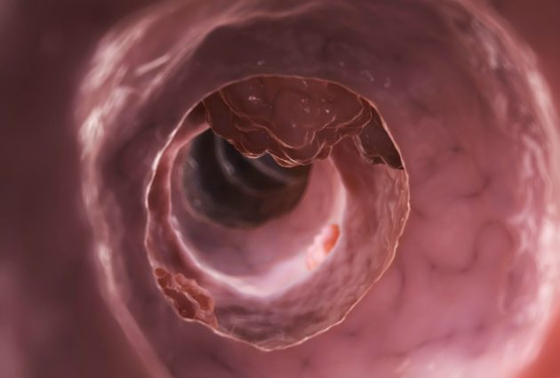Лечение рака кишечника народными методами