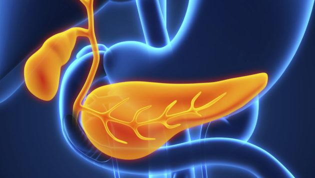 Липоматоз поджелудочной железы что это такое