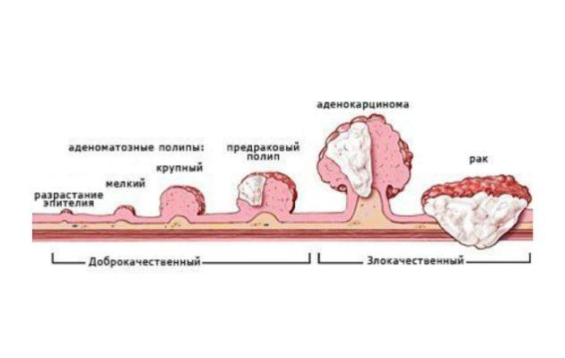 Развитие рака толстого кишечника