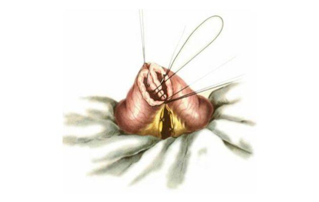 Резекция тонкой кишки с анастомозом «конец в конец»
