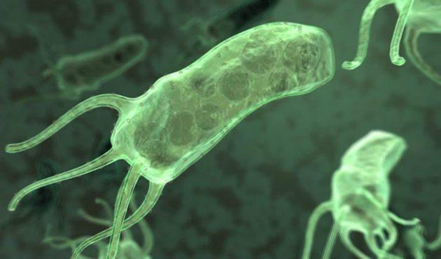 Самая частая причина язвы двенадцатиперстной кишки - хеликобактерии