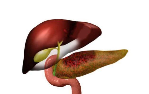 Фибролипоматоз встречается у пациентов с хроническим панкреатитом