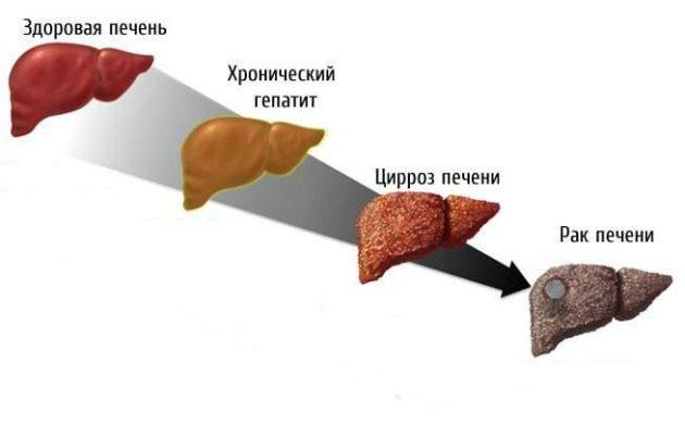 Как развиваются заболевания печени