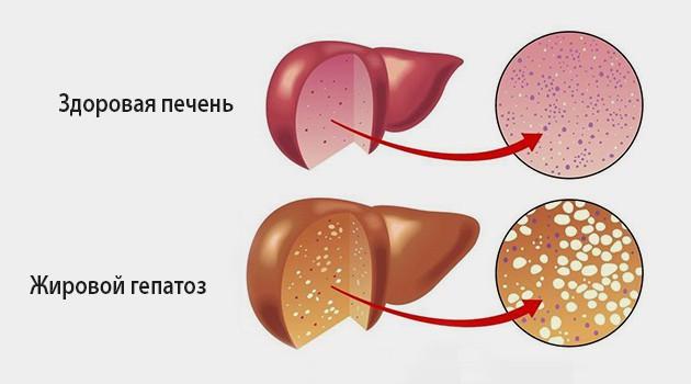 Заболевание гепатоз печени