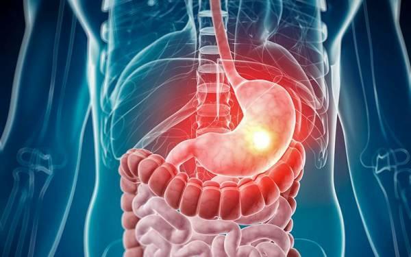 заболевания желудочно кишечного тракта