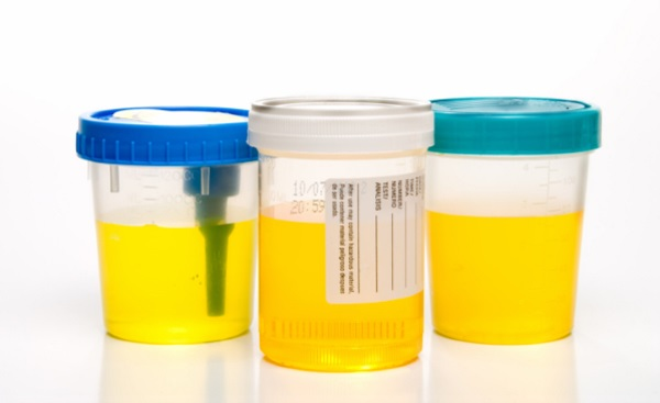Анализ мочи на аппендицит