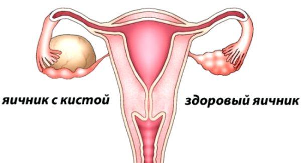 причиной боли слева в животе у женщин может быть киста яичника